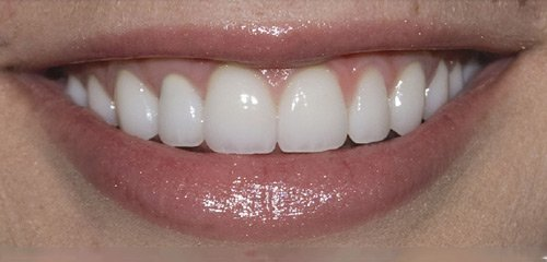 After Philips Zoom! Whitening